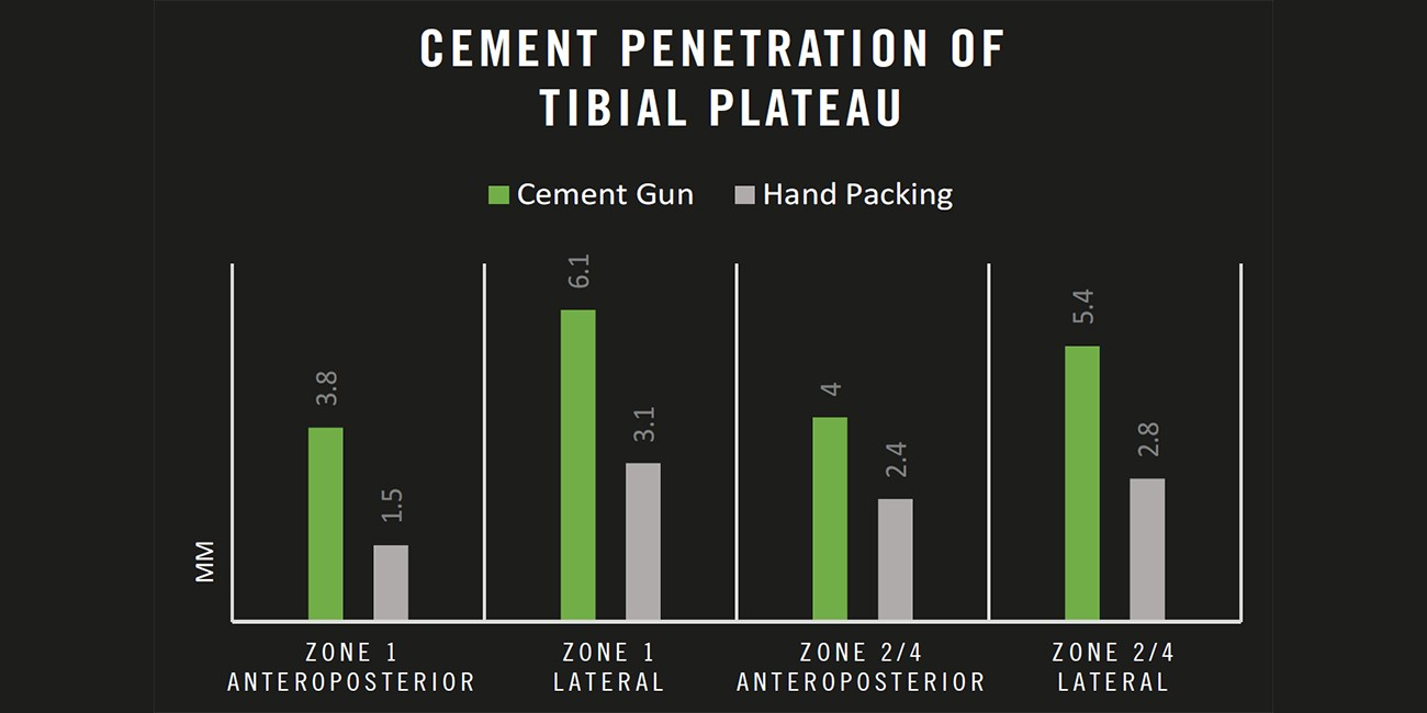 Cement Penetration of Tibial Plateau