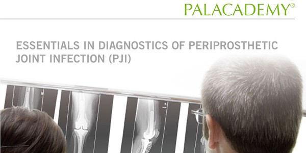 eBook Diagnostics of PJI