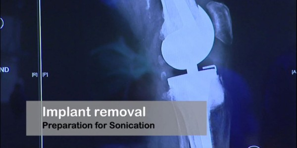 Implant removal. Preparation for Sonication