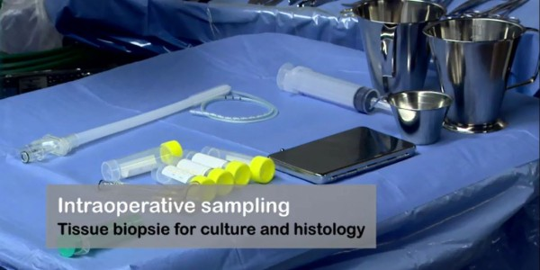 Intraoperative sampling. Tissue biopsie for culture and histology