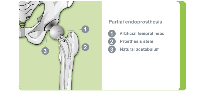Artificial hip joint partial endoprosthesis