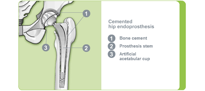 Fixation hip joint - cemented hip endoprosthesis