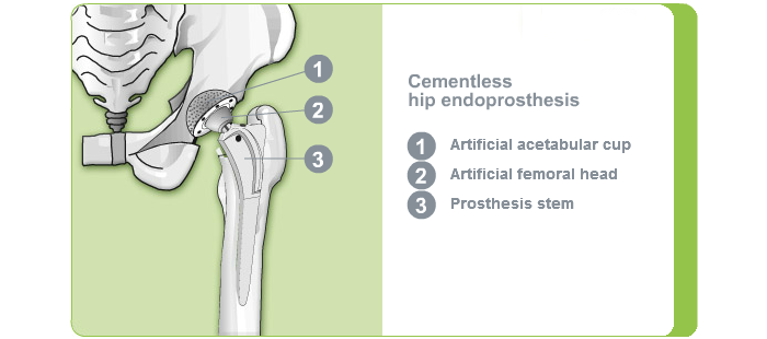 Fixation hip joint - cementless hip endoprosthesis