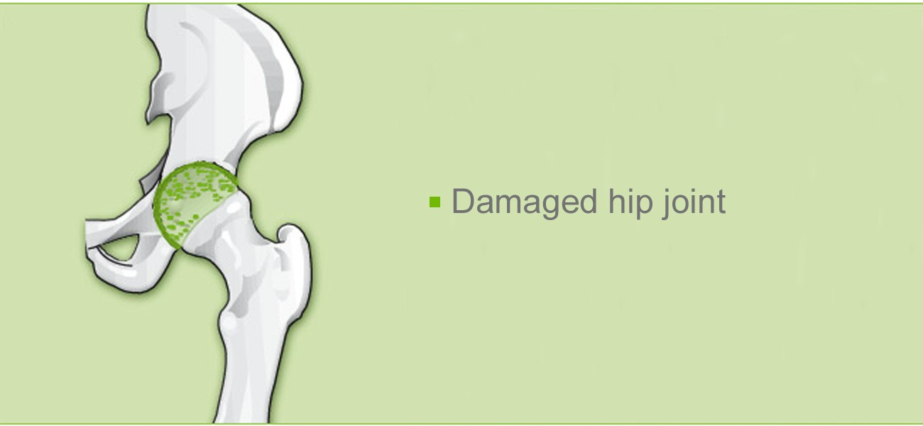 Hip joint operation: Damaged hip joint
