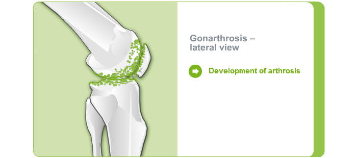 Damage knee joint: Lateral view of knee with gonarthrosis