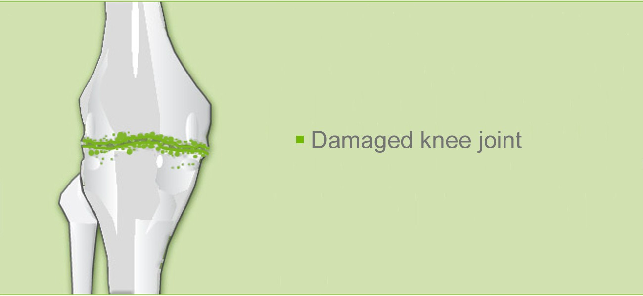Knee joint operation: Damaged knee joint