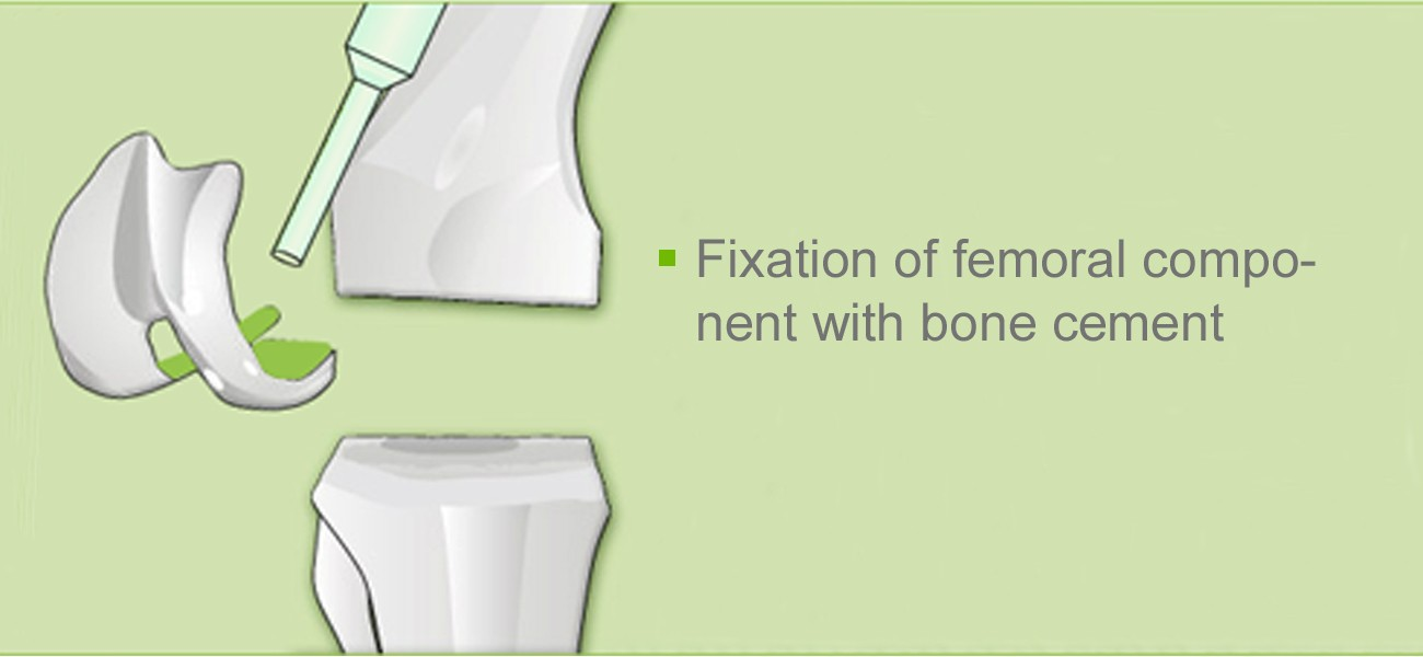 Knee joint operation: fixation femoral component with bone cement
