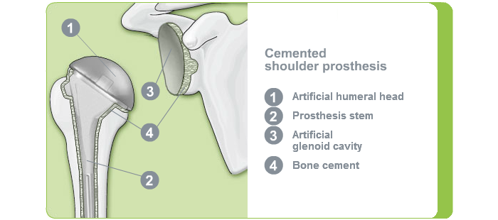 Fixation shoulder joint: Cemented shoulder endoprosthesis