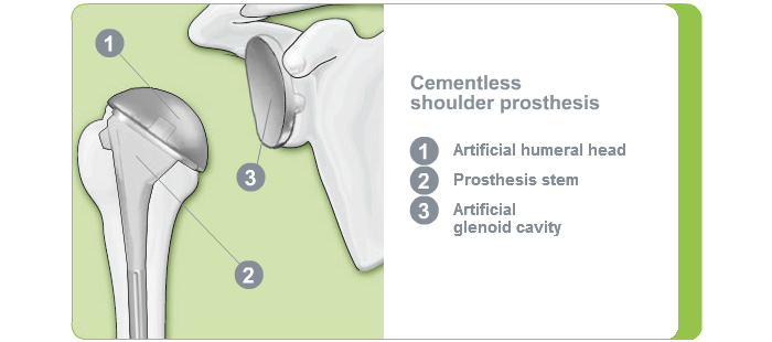 Fixation shoulder joint: Cementless shoulder endoprosthesis