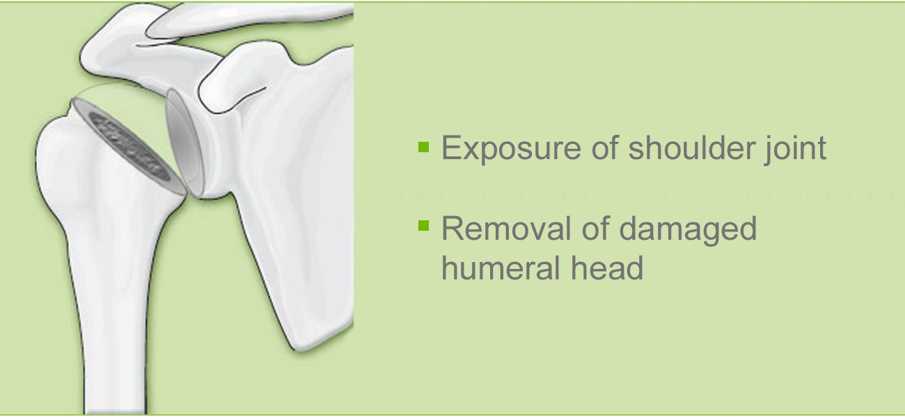 Shoulder joint operation: removal damaged humeral head