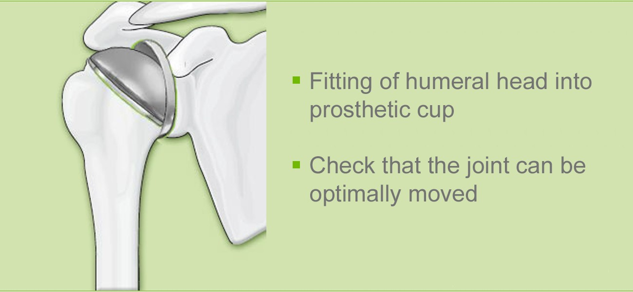 Shoulder joint operation: fitting of humeral head